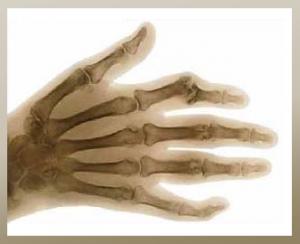Revmatodini artritis